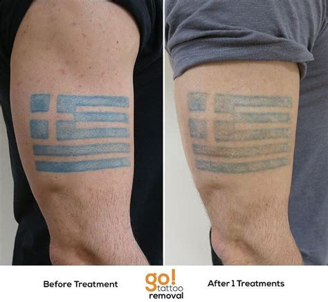 tattoo removal pinterest 679 best images about tattoo removal in progress on