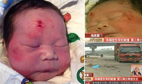 Miracle Babies Channel 5 Miracle Baby Unhurt After Catapulting Out Of As She Is Run By Truck