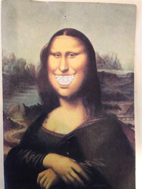Mona Cc mona smile supersonic orthodontics