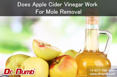 tattoo apple cider vinegar does apple cider vinegar work for mole removal dr numb blog