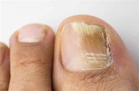 imagenes uñas con hongos 5 potentes remedios caseros para eliminar los hongos de