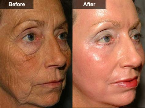 age amp brown spots removal mclean va woodbridge va