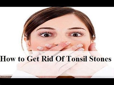 1000 ideas about tonsil stones on tonsil
