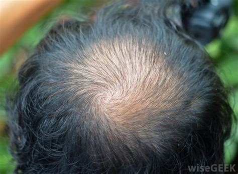 a man balding at the crownwhat is the best hair style for what causes premature baldness with pictures