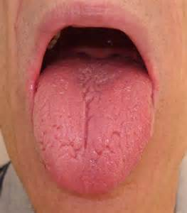 what color should my tongue be image gallery normal tongue