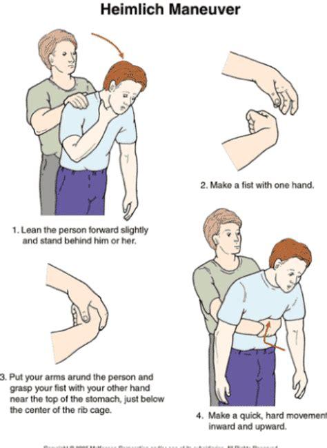 heimlich maneuver heimlich learn save lives