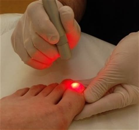 light therapy for nail fungus laser treatment for toenail fungus costs and effects