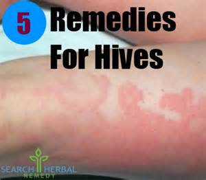 hives home remedy 5 remedies for hives hives treatments search herbal