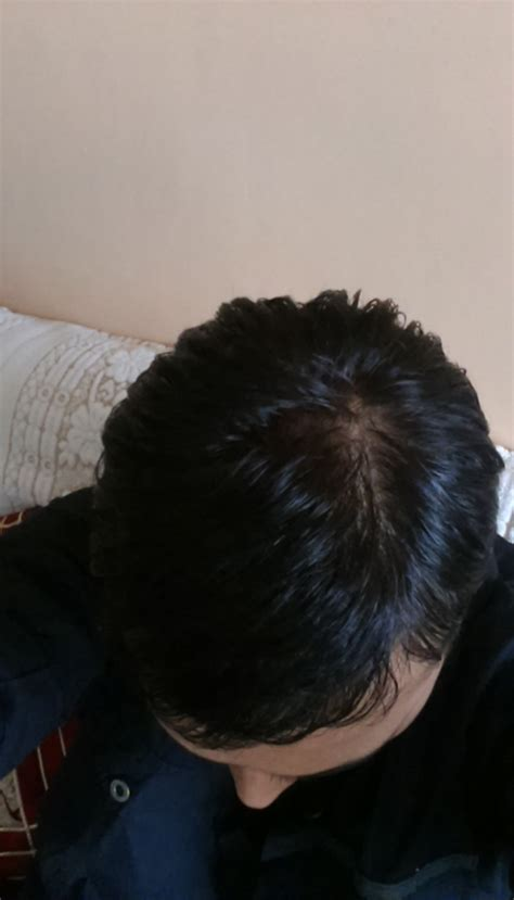 northwest lace llc hair loss forum northwestlace com northwest lace llc hair loss forum northwestlace com