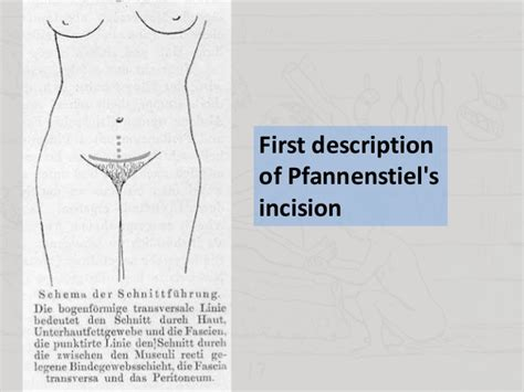 pfannenstiel incision c section pfannenstiel incision c section 28 images pfannenstiel