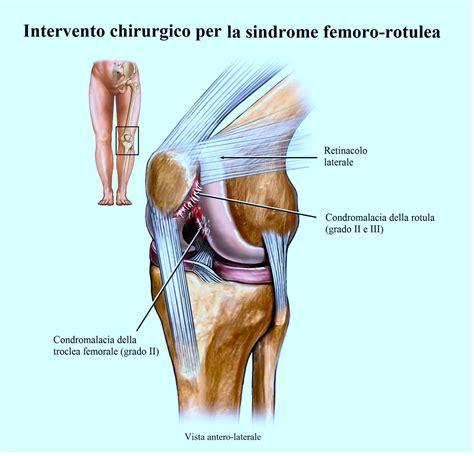 mal di ginocchio interno dolore al ginocchio interno esterno laterale cause
