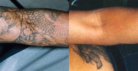 tattoo removal bay area laser removal walnut creek revlite laser