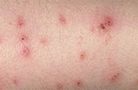 bed bugs bites pictures and symptoms bed bug bite pictures marks symptoms causes treatment