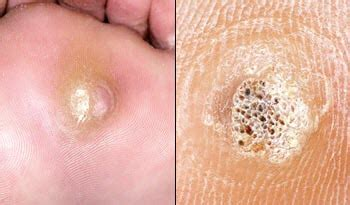 planters warts removal treatments for warts including veruccas plantar