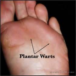 how do you get planters warts mongran