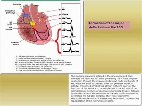 ecg tutorial online video ecg tutorial basic principles of ecg analysis 001 youtube