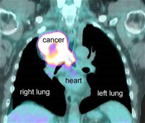 pet scans  cancer cases