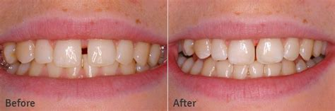 cosmetic fillings and crowns the high dental