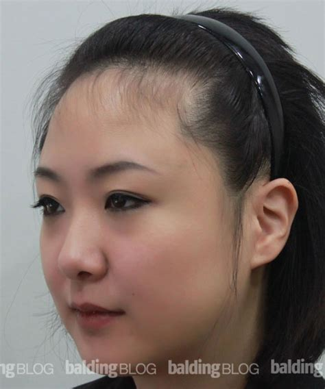 women hairlines transplanted female hairline with photos hair loss
