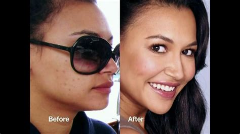 proactiv dark spot corrector before and after acne pit scar treatment vancouver