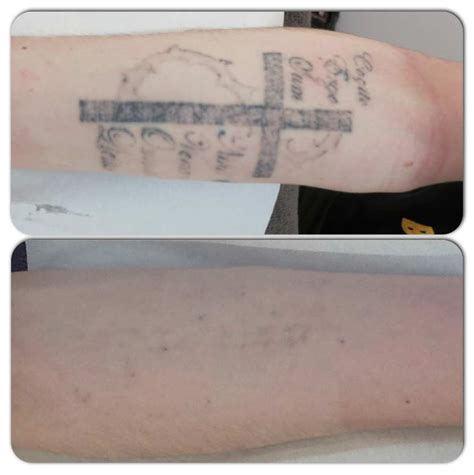 laser tattoo removal sydney cost sydney laser removal before after photos 9231 5999