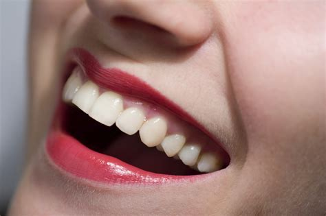 worst    oral health perfect