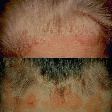 best hair for psoriasis 17 best images about psoriasis on pinterest skin