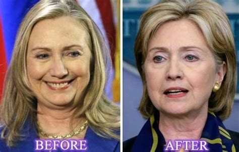 has hillary clinton had cosmetic work done did hilary clinton do plastic surgery for run on white