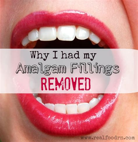 How To Detox After Mercury Filings by Why I Had My Amalgam Fillings Removed