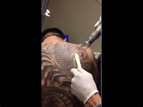 hoboken tattoo laser removal at hoboken edgewater med spas in