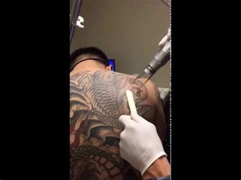 hoboken tattoo laser removal at hoboken edgewater med spas in