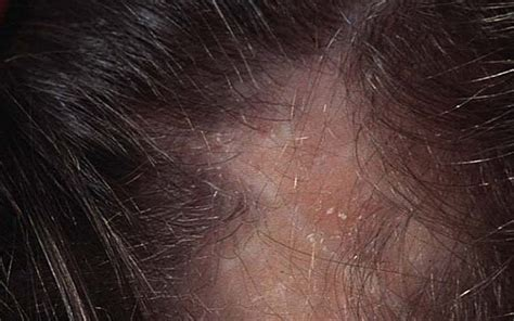 alopecia hair loss in women lupus hair loss how to deal with lupus hair loss
