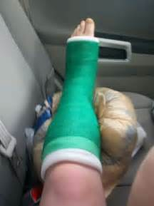 leg cast colors miniature mishaps broken leg timeline april 15th may 25th
