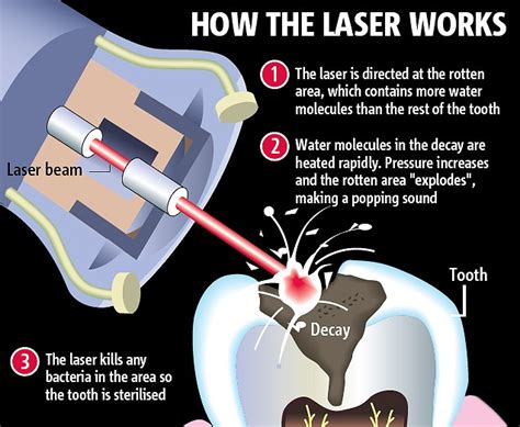 diode laser for dentistry dental lasers can remove decay with no need for dental anesthetics like novocaine laser