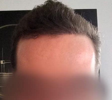 hair transplant innovations natural looking result hair transplant 3000 grafts by dr