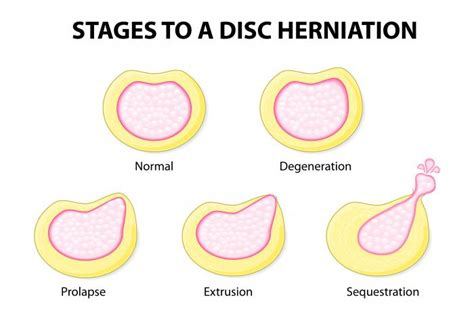 herniated disc diagram india a tourists paradise sciatica causes symptoms