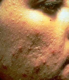 membuat rumusan masalah kti askep askeb kti keperawatan kebidanan masalah pada kulit