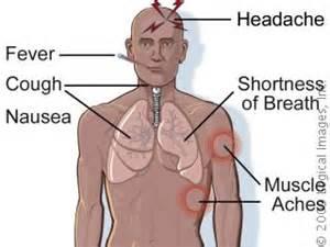 Pontiac Fever Symptoms Legionnaire S Disease Physiopedia