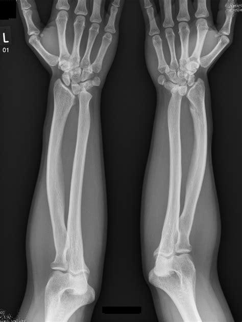 Bilateral Madelung deformity | Image | Radiopaedia.org