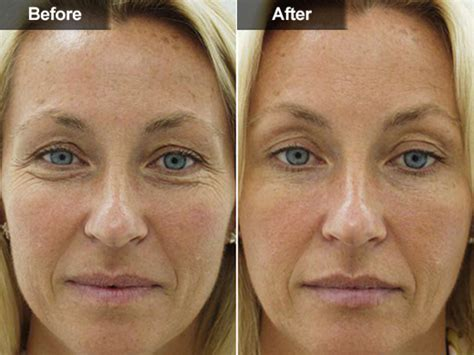 how long does botox last doctor answers tips realself botox in mclean va woodbridge va skin laser surgery