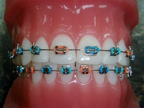 cool colors for braces cool braces colors combinations www imgkid the