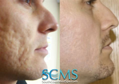 remove acne scars 10 best images about laser acne scar removal on pinterest