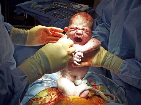 video of c section birth the deranged housewife what i wish every woman knew