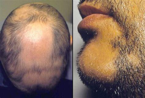 how to cut alepecia areata hair alopecia areata picture image on medicinenet com