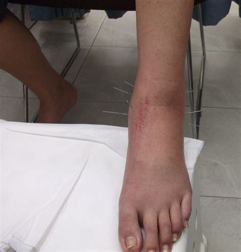 leg sprain tcm news leg injury a patient with a torn ligament