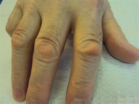 Bony Knobs On Finger Joints by Image Gallery Knuckles Are Sore
