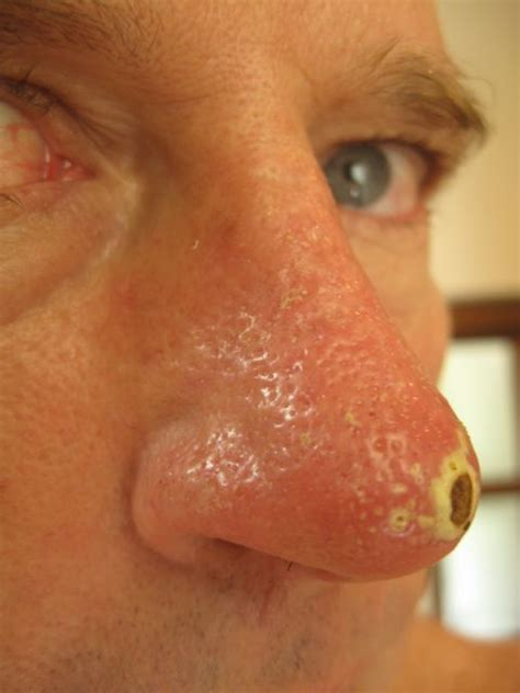 Blind Acne The Gallery For Gt Enlarged Pores Nose