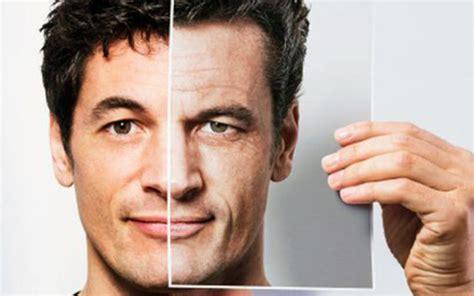jose man with no face after surgery blefaroplastia cirurgia de p 225 lpebras est 233 tica ou n 227 o