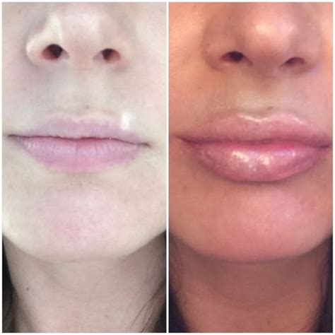 city lip plumper before and after you me