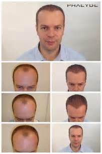 haartransplantation bilder vorher nachher haartransplantation und haarpigmentierung bevor nachher